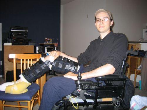 Broken_leg_dwight